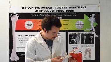 CLOTHILDE :  implant innovant pour le traitement des fractures de l'épaule