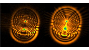 NANOFIMT: Produire des outils de diagnostic et de prise en charge médicale grâce aux nanoparticules